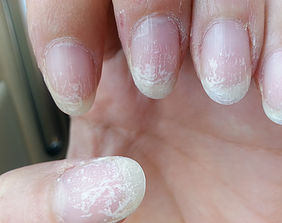 Flaking Nails