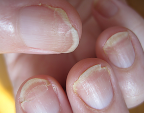 Phytocharm Splitting and Cracking Nails