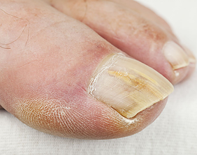 Fungal Nail Damages