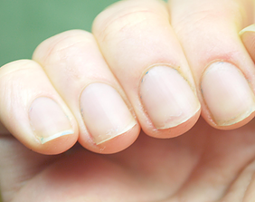 Weak Nails with Low Growth