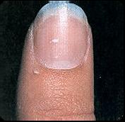 nail white spots